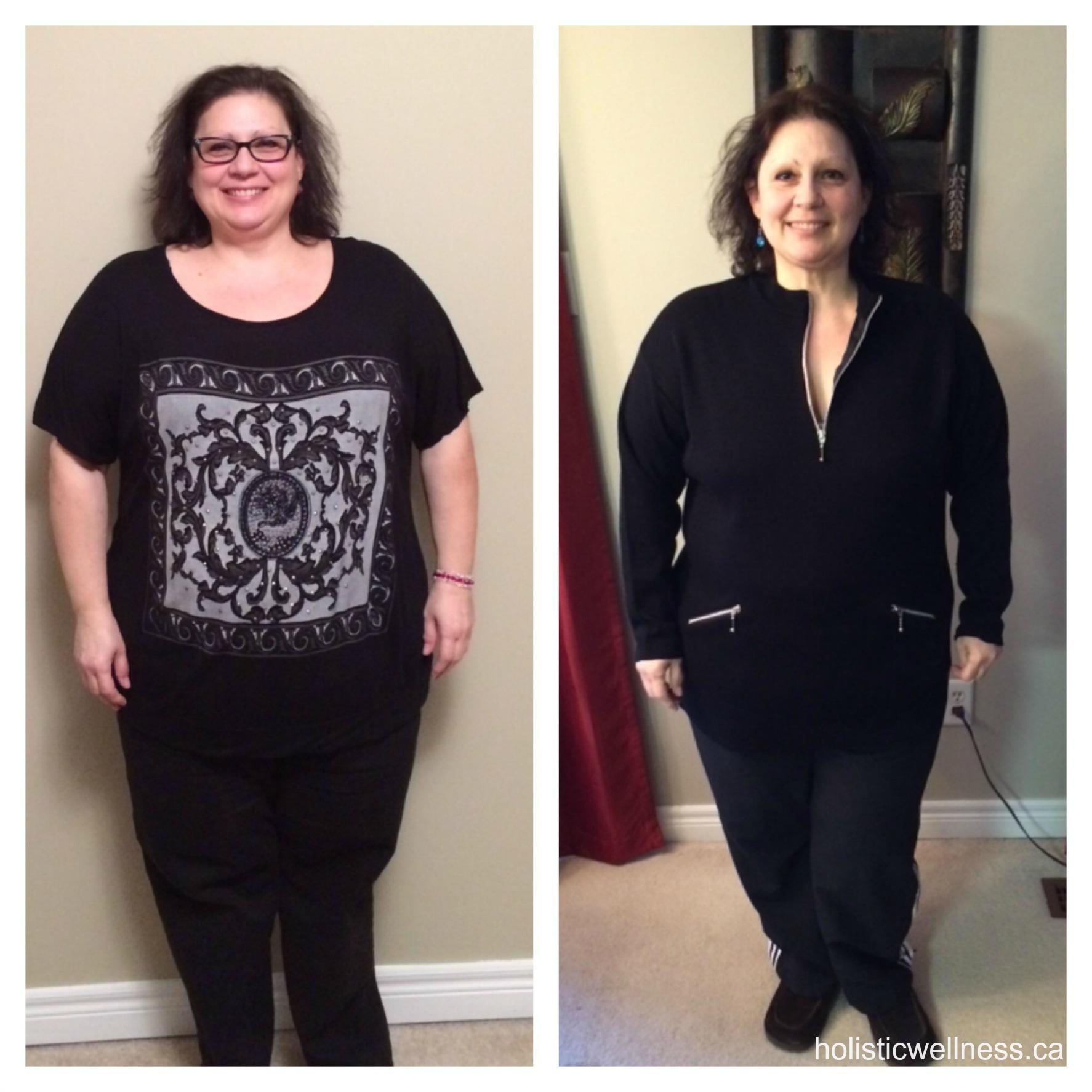 Hcg weight loss alpharetta ga